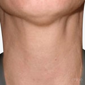 Le Dysport pour traiter les bandes pléthysmales du cou après Clinique Chloé