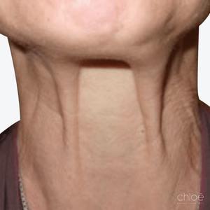 Le Botox dans le traitement des rides du cou avant Clinique Chloé