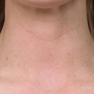 Redonner du tonus au cou avec le Botox après Clinique Chloé