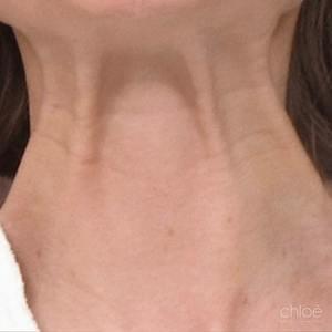 Tonifier le cou avec les injections de Botox avant Clinique Chloé