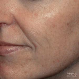Diminution de l'apparence des taches pigmentaires avec le Venus Versa IPL avant Clinique Chloé