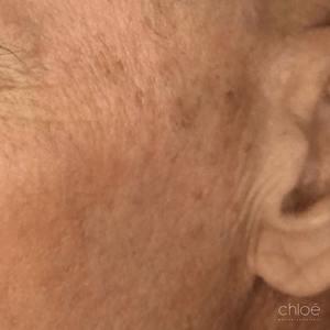 Lumère intense pulsée au niveau du visage pour traiter les taches de soleil avant Clinique Chloé