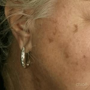 Réduire l'apparence des taches pigmentaires avec le traitement au laser IPL avant Clinique Chloé