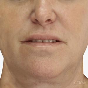Diminution des taches pigmentaires avec le Venus Versa après Clinique Chloé
