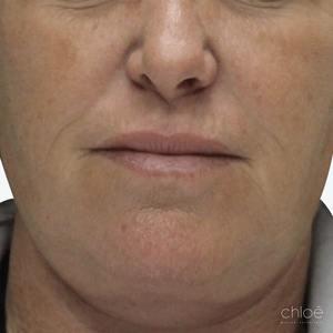 Le IPL est un traitement efficace pour les taches pigmentaires avant Clinique Chloé