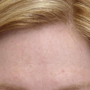 Taches pigmentaires traitées avec la lumière intense pulsée après Clinique Chloé
