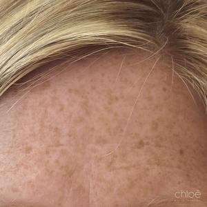 IPL Venus Versa pour traiter les taches pigmentaires du visage avant Clinique Chloé