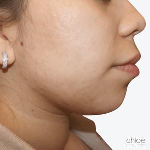 Se débarrasser des taches pigmentaires avec le Venus Versa après Clinique Chloé