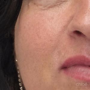 Rougeurs du visage enlevées avec le laser VBeam après Clinique Chloé