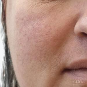 Couperose du nez traitée par le laser V-Beam avant Clinique Chloé