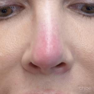 Diminuer les rougeurs du visage avec le laser avant Clinique Chloé