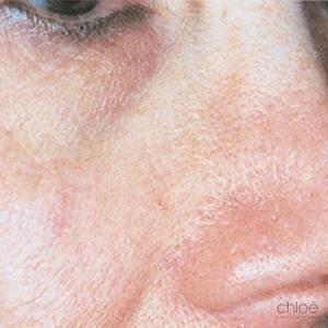 Boutons et rougeurs au niveau des joues traités par le laser après Clinique Chloé