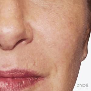 Solution miracle pour les rougeurs du visage après Clinique Chloé