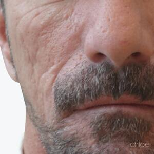 Acne Scars Treatment | Hyaluronic Acid | Clinique Chloe