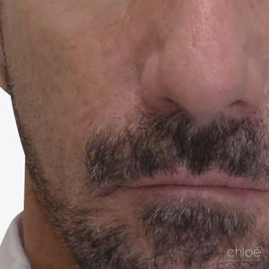 Traitement des Cicatrices d'acné avec des agents de comblement après - Clinique Chloé