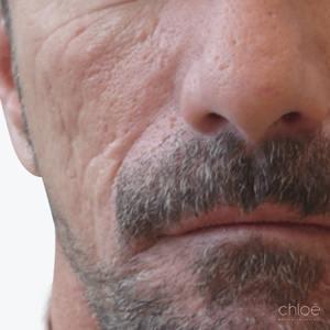 Réduire les cicatrices d'acné avec injections avant Clinique Chloé