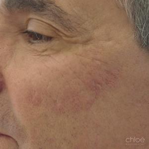Juvederm pour les creux des cicatrices d'acné visage après Clinique Chloé