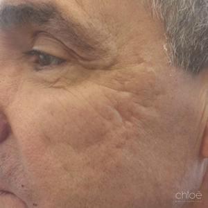 Effacer les cicatrices d'acné du visage avec injectables avant Clinique Chloé