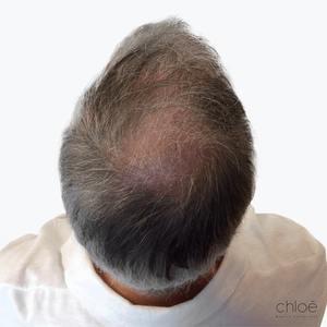 Traitement de la perte de cheveux avec le plasma riche en plaquettes PRP après Clinique Chloé