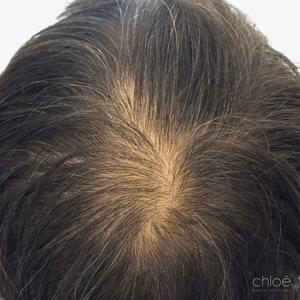 Le plasma riche en plaquettes PRP est un traitement anti chute de cheveux efficace avant Clinique Chloé