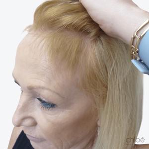 Stoppez la chute de cheveux grâce au plasma riche en plaquettes PRP après Clinique Chloé
