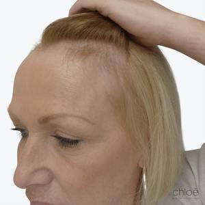 Stimuler la croissance des cheveux à l'aide du plasma riche en plaquettes PRP avant Clinique Chloé