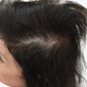 Traitement de la chute des cheveux avec le plasma riche en plaquettes PRP après Clinique Chloé