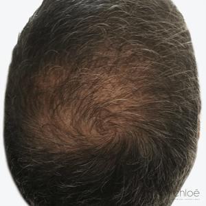 Ralentir la perte de cheveux avec le plasma riche en plaquettes PRP avant Clinique Chloé