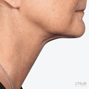 Traitement du double menton avec Belkyra après Clinique Chloé