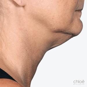 Se débarrasser du double menton avec le Belkyra avant Clinique Chloé