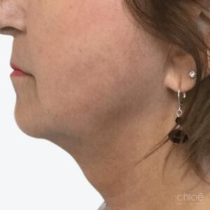 Se débarrasser du double menton avec le Belkyra après - Clinique Chloé