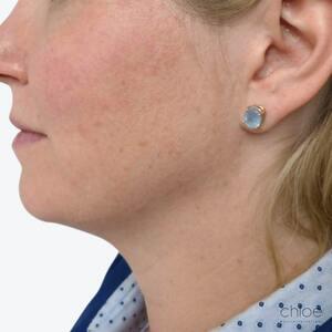 Traitement du double menton avec Belkyra avant - Clinique Chloé