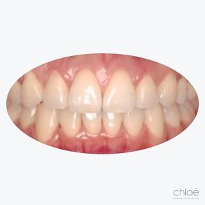Résultat aligneurs transparents invisalign après Clinique Chloé