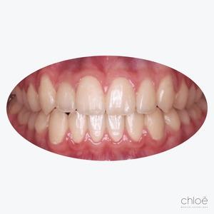 Résultat après invisalign Clinique Chloé