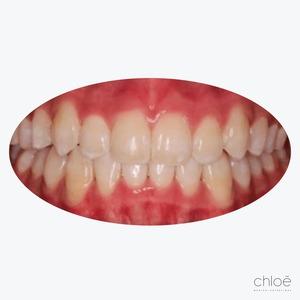 Dents croches invisalign après Clinique Chloé