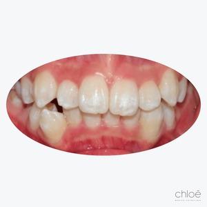 Dents croches invisalign avant Clinique Chloé