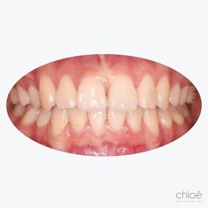 Alignement des dents après invisalign Clinique Chloé