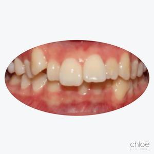 Alignement des dents avant invisalign Clinique Chloé