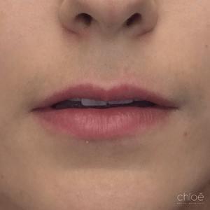 Donner plus de volume aux lèvres avec acide hyaluronique avant Clinique Chloé