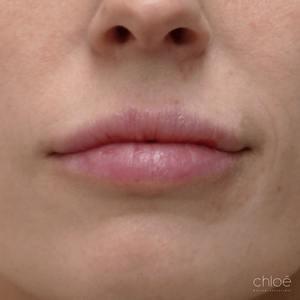 Grossir lèvres avec agents de comblement après Clinique Chloé