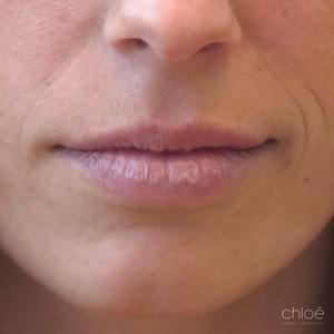 Lèvres plus pulpeuses avec agents de comblement avant Clinique Chloé