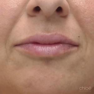 Repulper vos lèvres avec des agents de comblement après Clinique Chloé