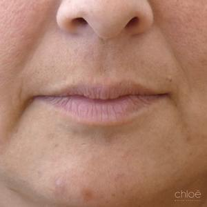 Lèvres sexy grâce aux agents de comblement avant Clinique Chloé