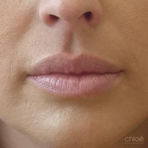 Belles lèvres avec agents de comblement après Clinique Chloé