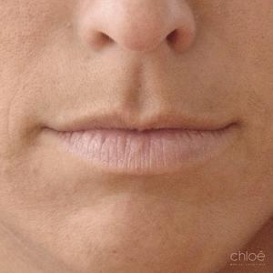 Embellir lèvres avec injections d'acide hyaluronique avant Clinique Chloé