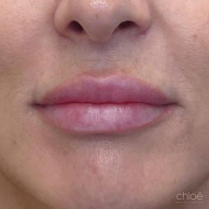Les agents de comblement peuvent redonner aux lèvres le volume perdu après Clinique Chloé