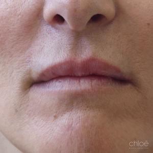 Restructurer lèvres avec agents de comblement avant Clinique Chloé
