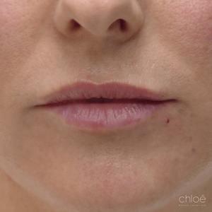 Lèvres d'apparence plus jeune avec acide hyaluronique après Clinique Chloé