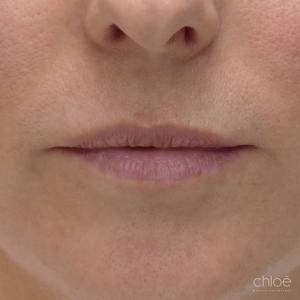 Rajeunir l'apparence des lèvres avec agents de comblement avant Clinique Chloé
