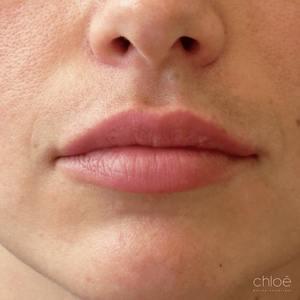 Augmentation des lèvres effet naturel avec agents de comblement après Clinique Chloé